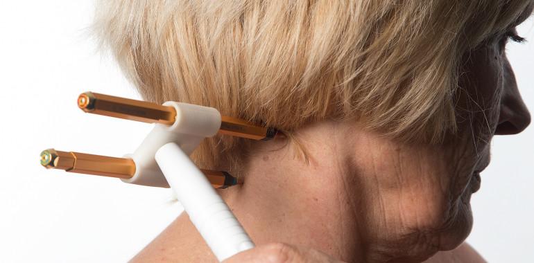 Akupunktura z domačega kavča – CWP, čudežni krotilec bolečin in bolezni?