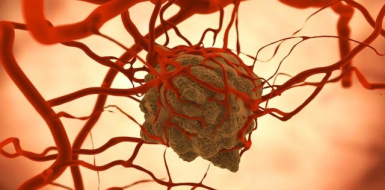 Online delavnica: ScalarPrana Cancer Therapy