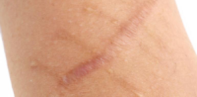 MSTR - tehnika sprostitve brazgotinastega tkiva