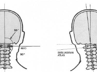 Brezplačni pregledi atlasa - 1.vratnega vretenca